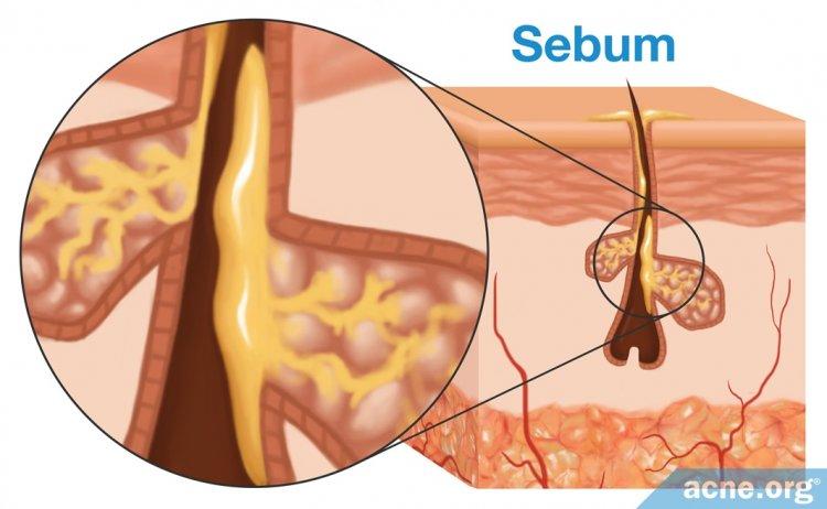 Sebum
