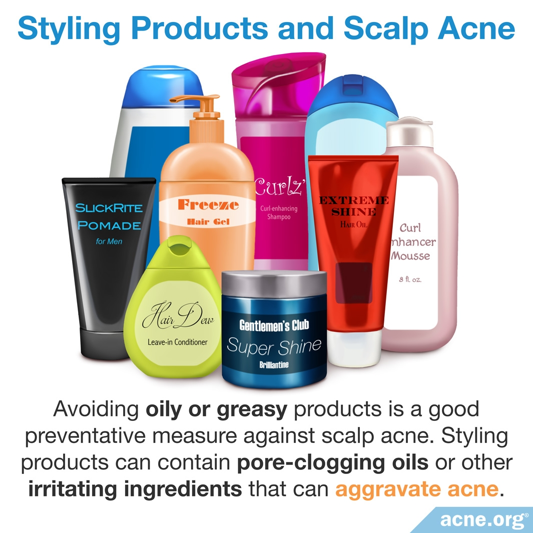 Styling Products and Scalp Acne