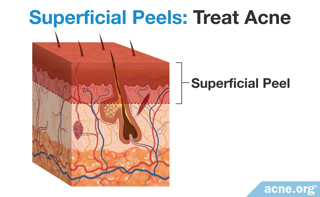 Superficial Chemical Peels - Treat Acne