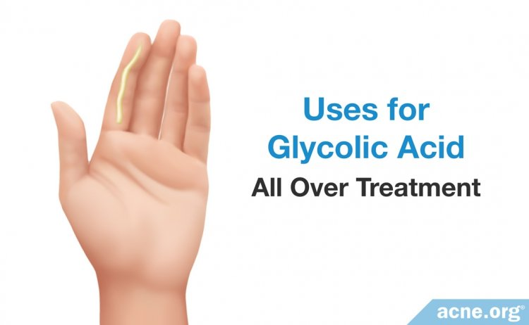 Uses for Glycolic Acid: All Over Treatment