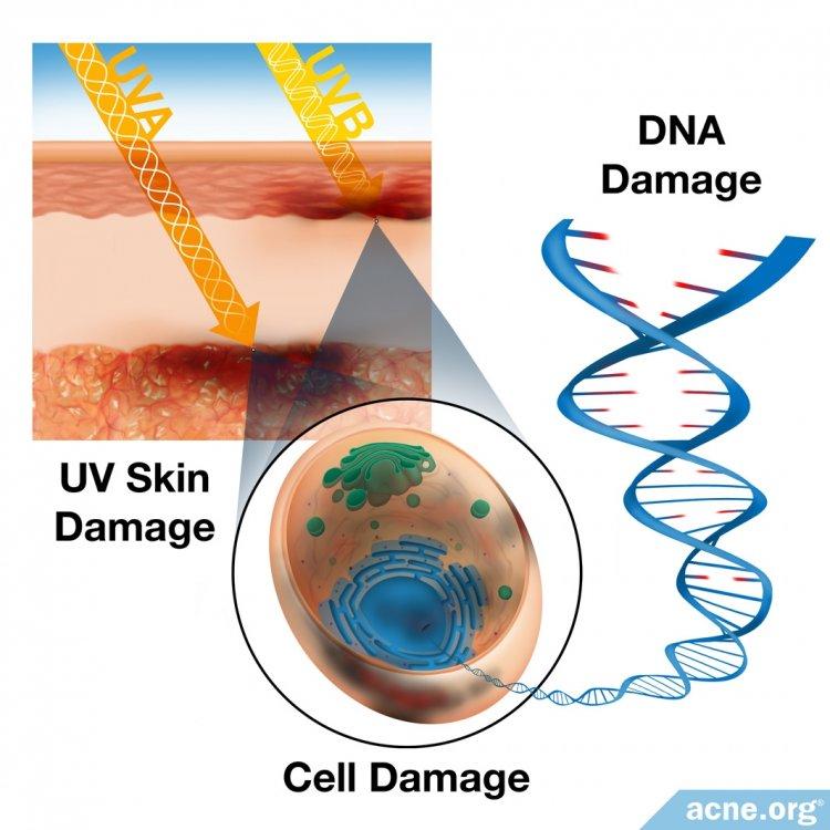 UV Skin Damage