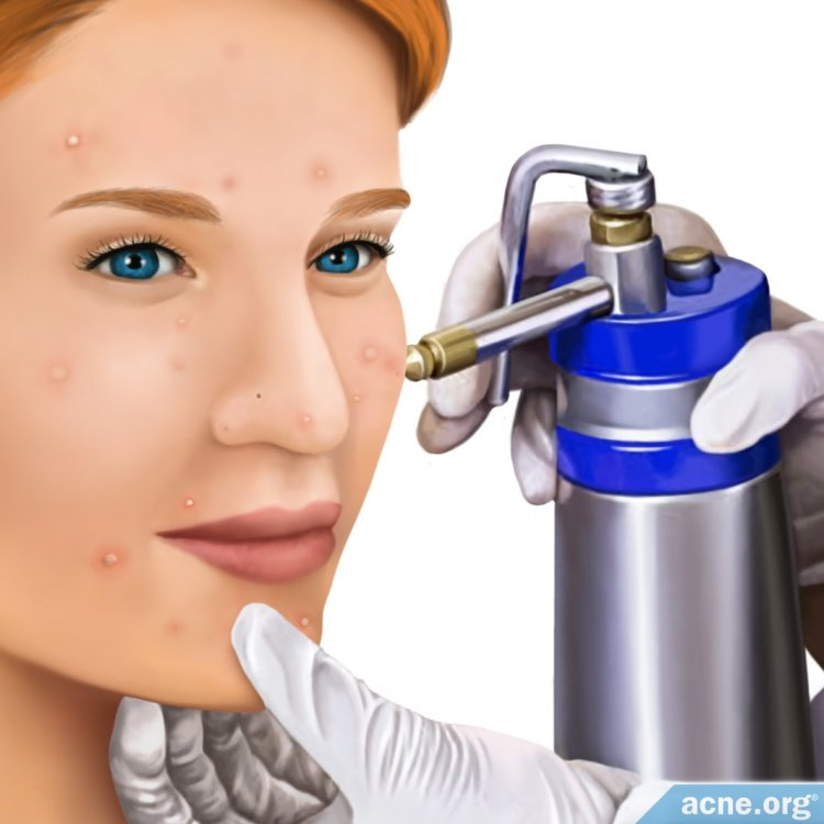 Woman Receiving Cryotherapy Treatment for Acne