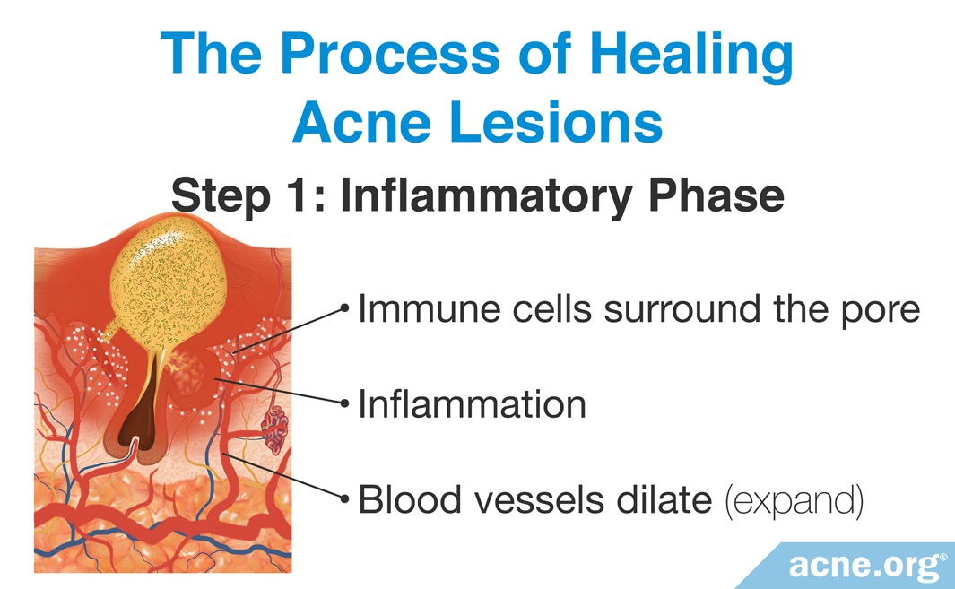 The Process of Healing Acne Lesions: The Inflammatory Phase