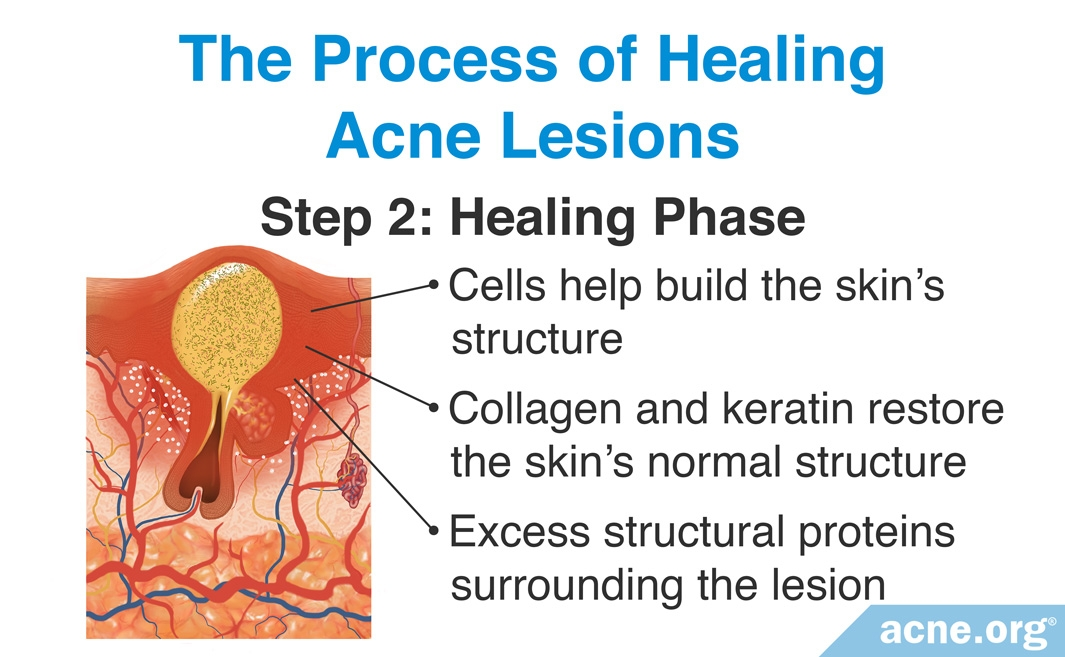 The Process of Healing Acne Lesions: Healing Phase