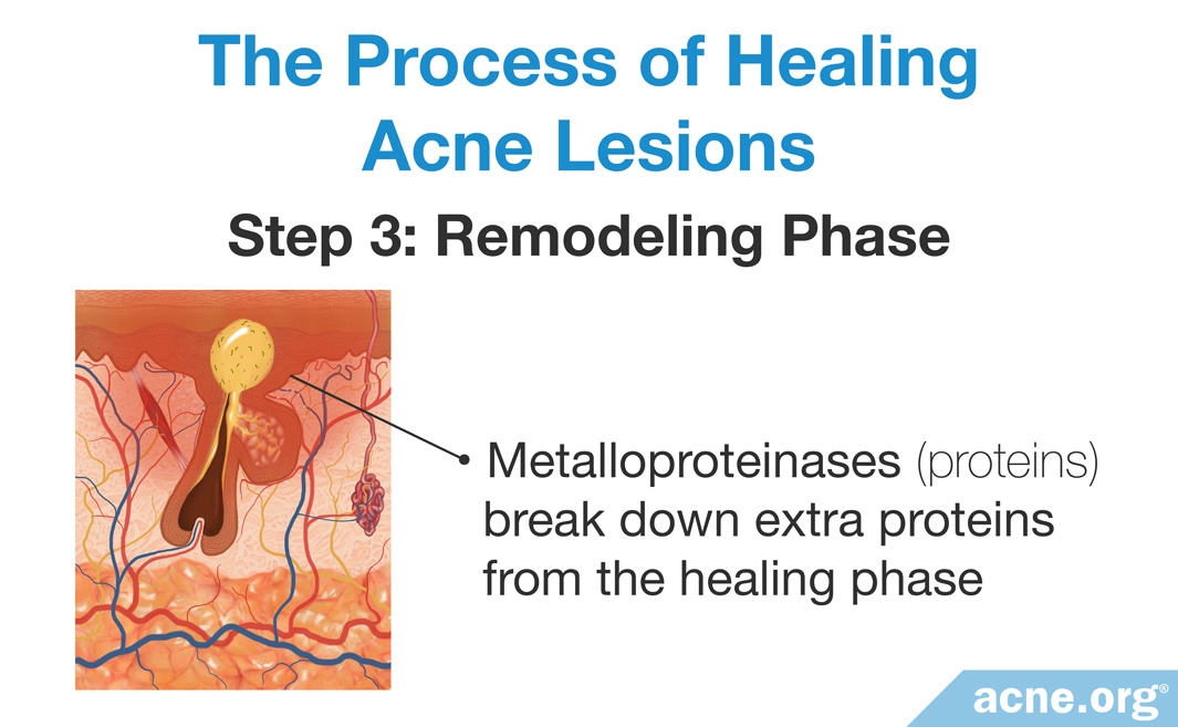 The Process of Healing Acne Lesions: Remodeling Phase