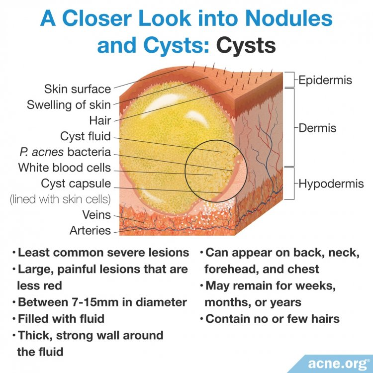 A Closer Look into Nodules and Cysts: Cysts