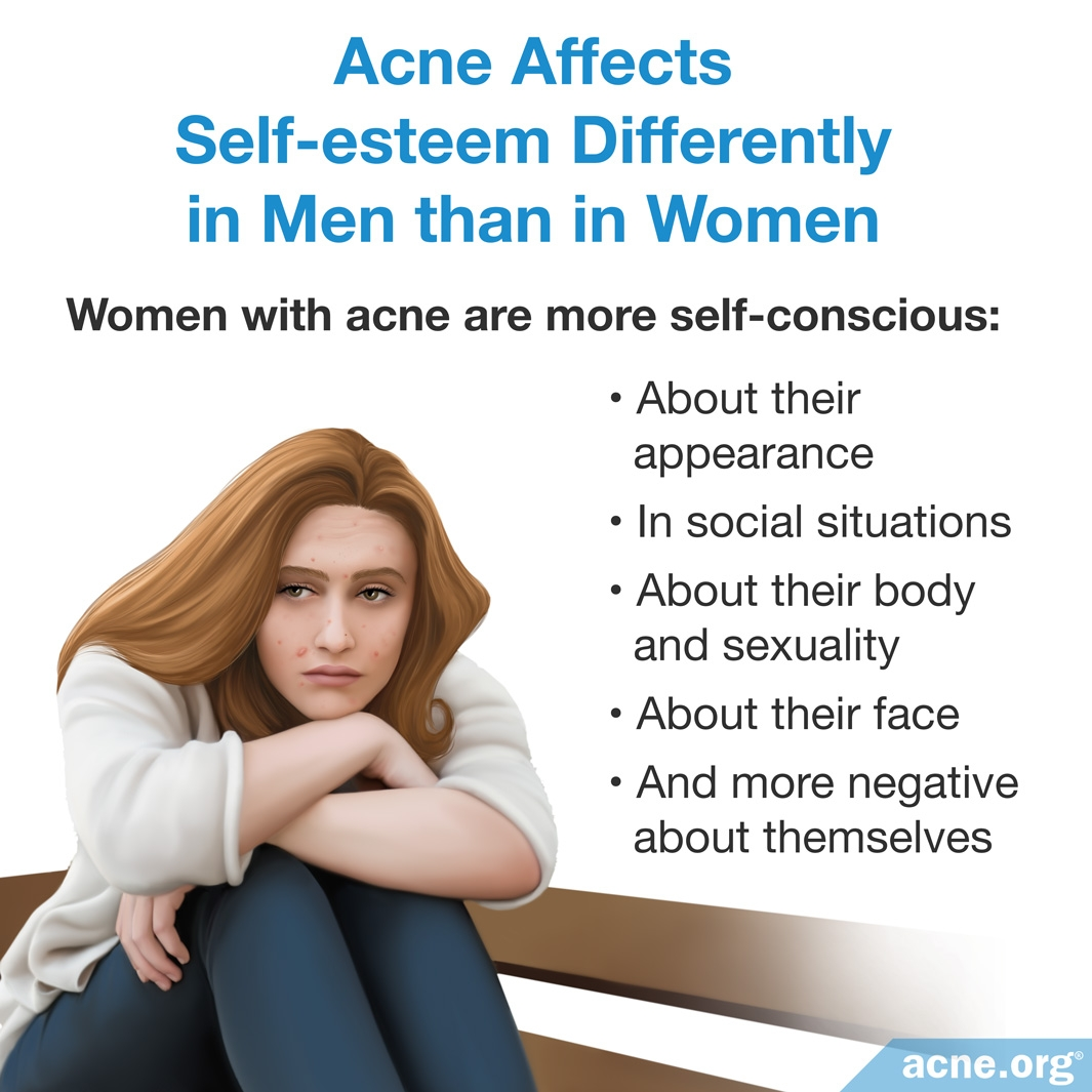 Acne Affects Self-esteem in Men Differently than in Women