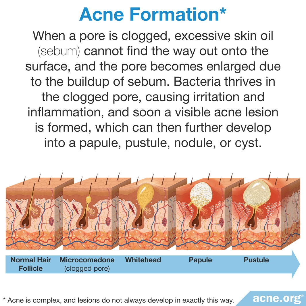 Acne Formation
