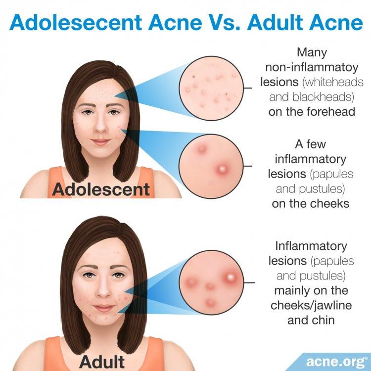 Adolescent Acne vs. Adult Acne