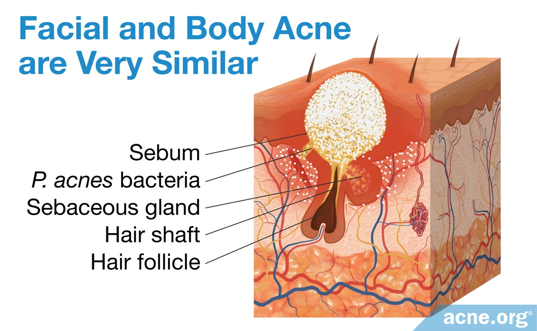 Facial and Body Acne Are Very Similar
