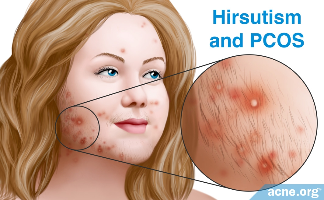 pcos without hirsutism