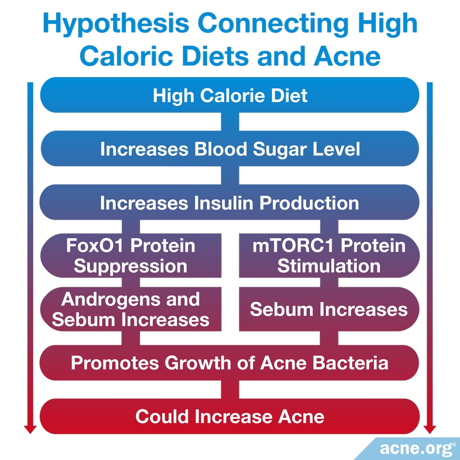 Hypothesis Connecting High Caloric Diets and Acne