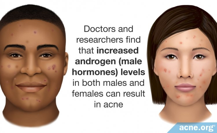 Increased Androgen Levels Can Result in Acne