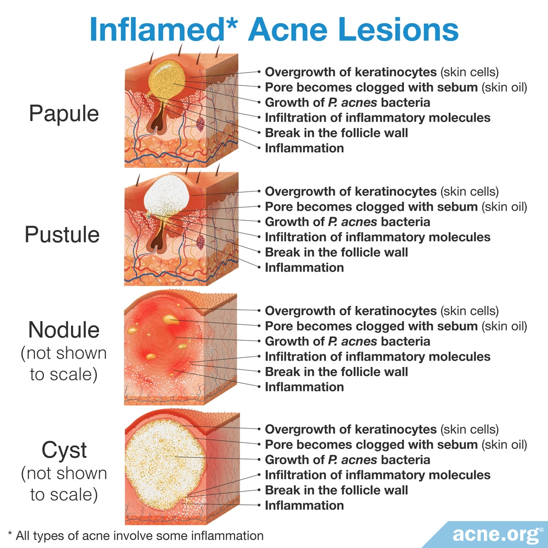 Inflamed Acne Lesions
