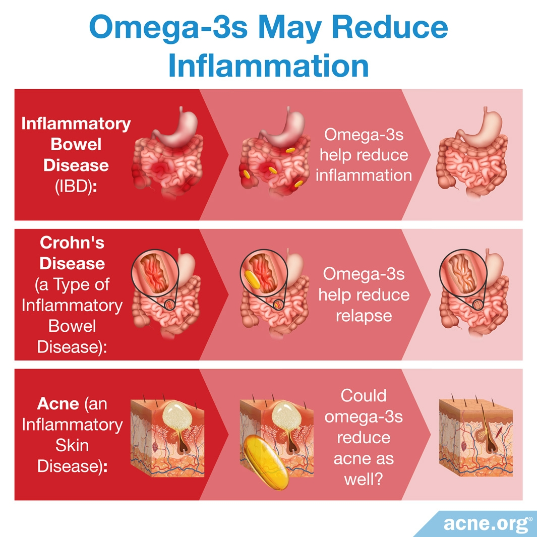 Omega-3s May Reduce Inflammation