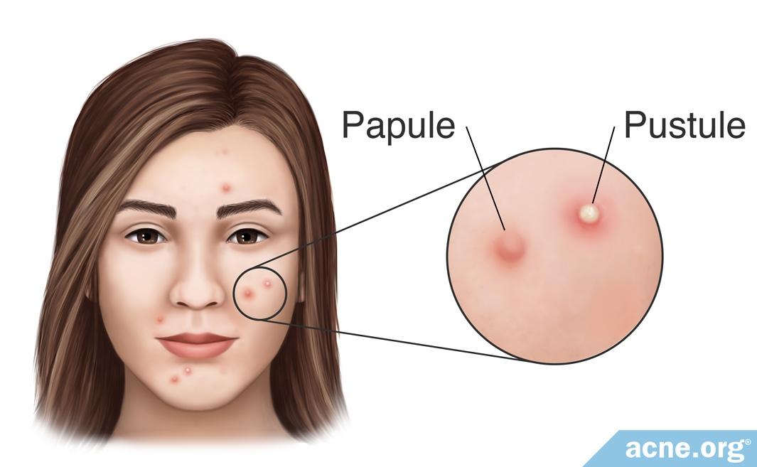 Papule vs. Pustule