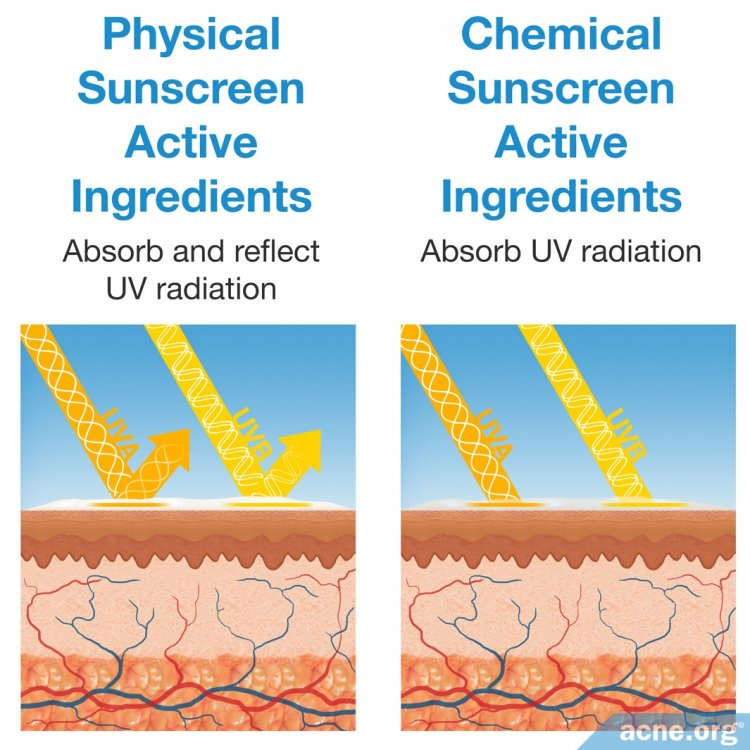 Physical Sunscreens vs. Chemical Sunscreens