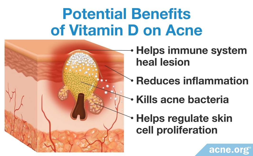 Potential Benefits of Vitamin D on Acne