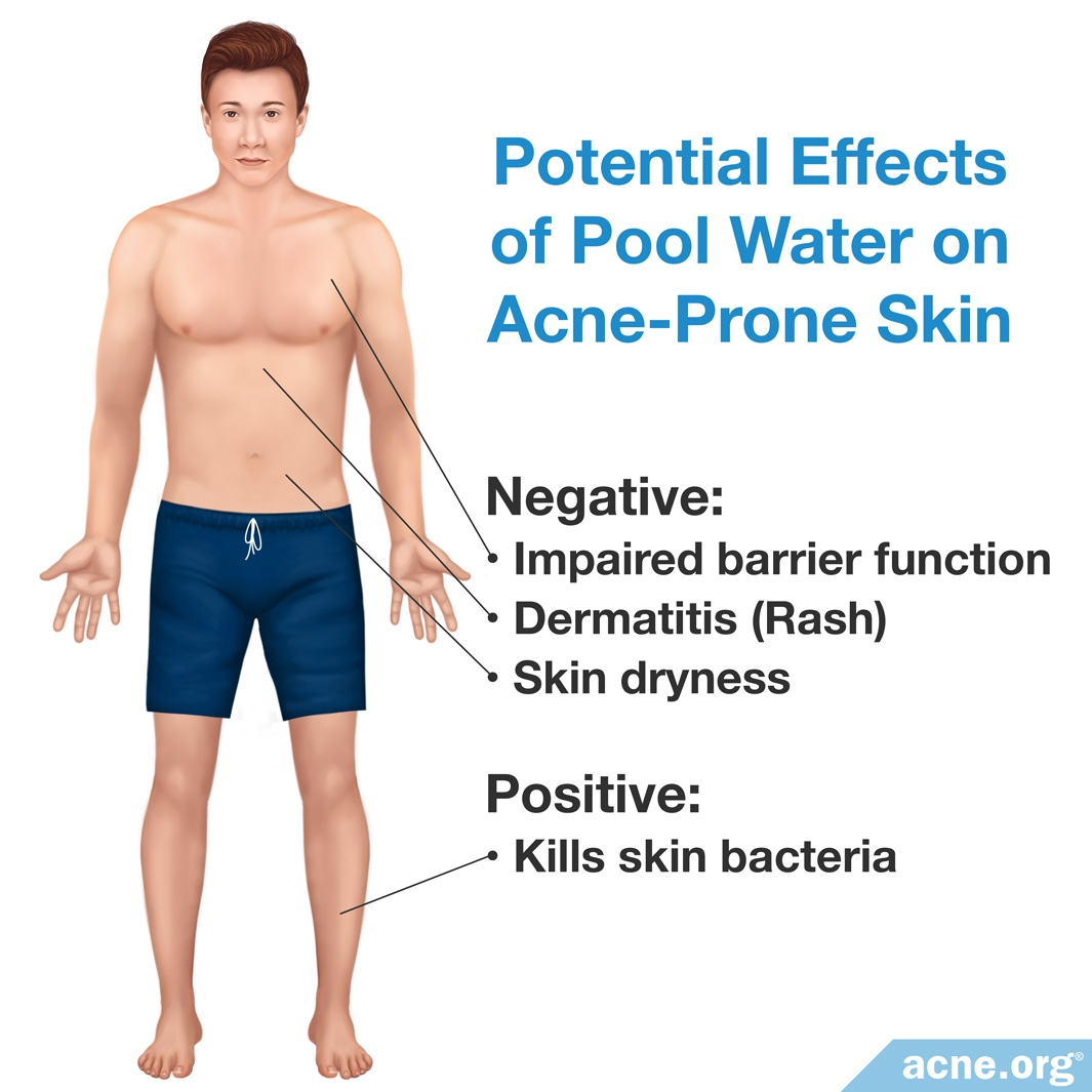 Potential Effects of Pool Water on Acne-Prone Skin