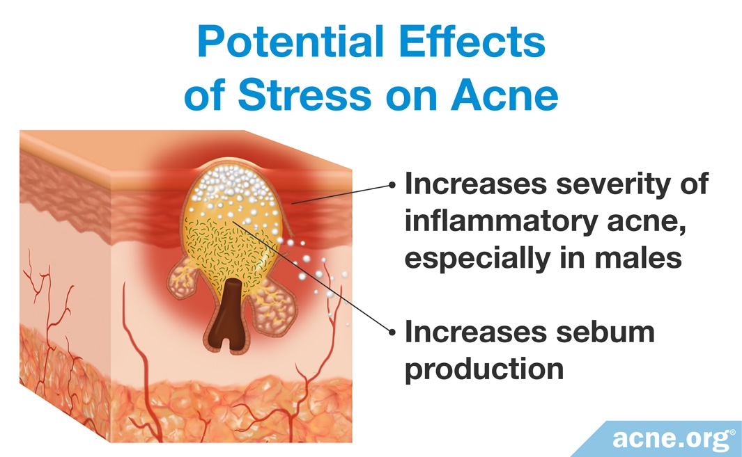 Potential Effects of Stress on Acne
