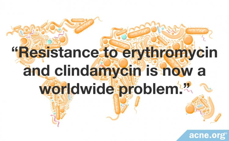 Resistance to erythromycin and clindamycin is now a worldwide problem