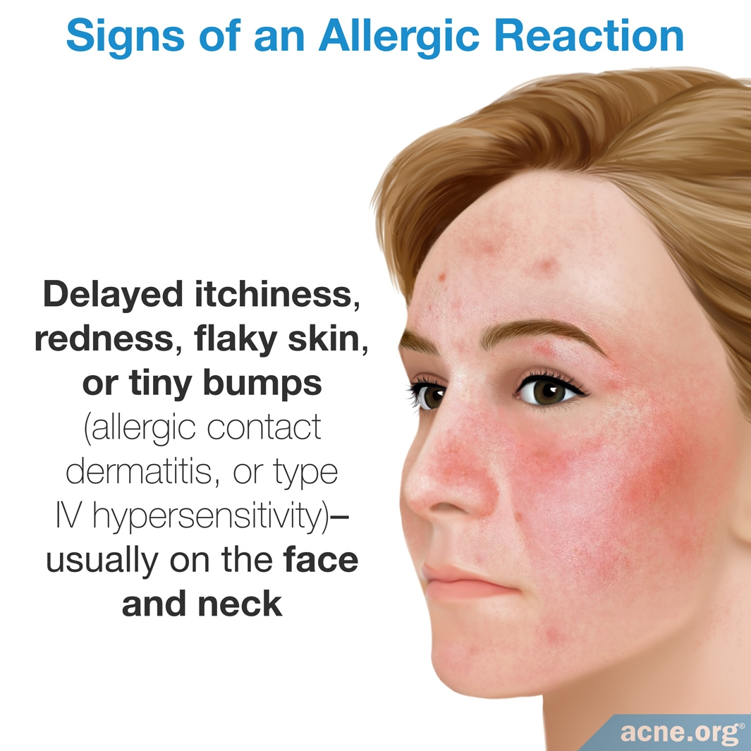 Signs of an Allergic Reaction