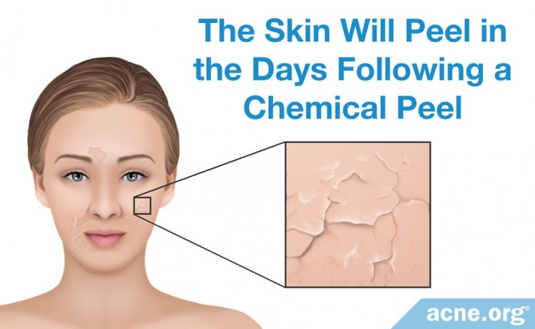 The Skin Will Peel in the Days Following a Chemical Peel