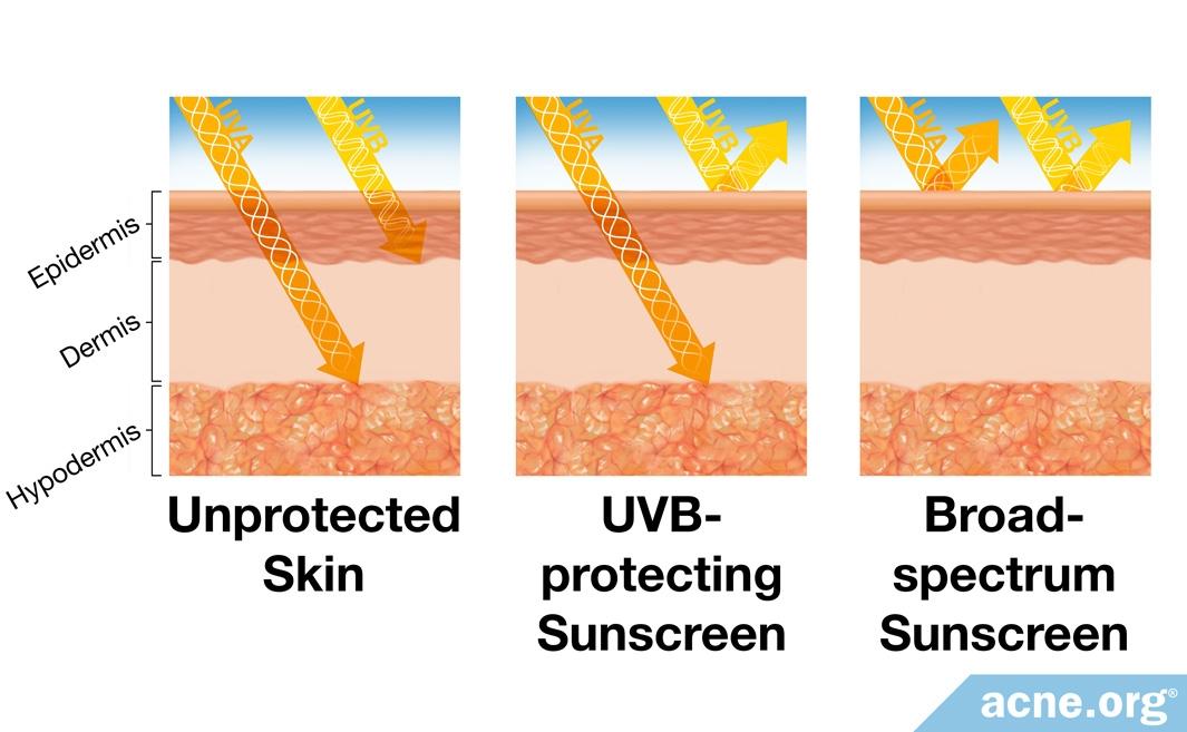 Unprotected Skin vs. Sunscreen-protected Skin