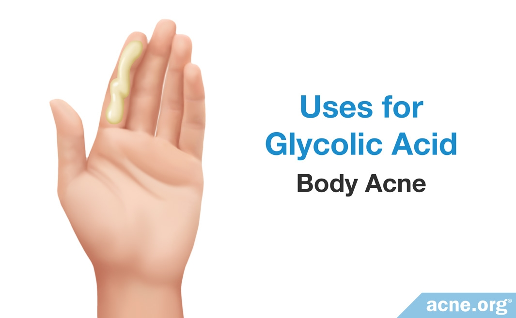 Uses for Glycolic Acid: Body Acne