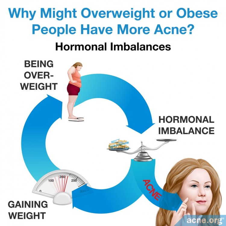 Why Overweight or Obese People Might Have More Acne: Hormonal Imbalances
