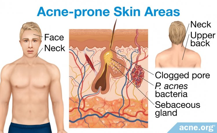 Acne-prone Skin Areas