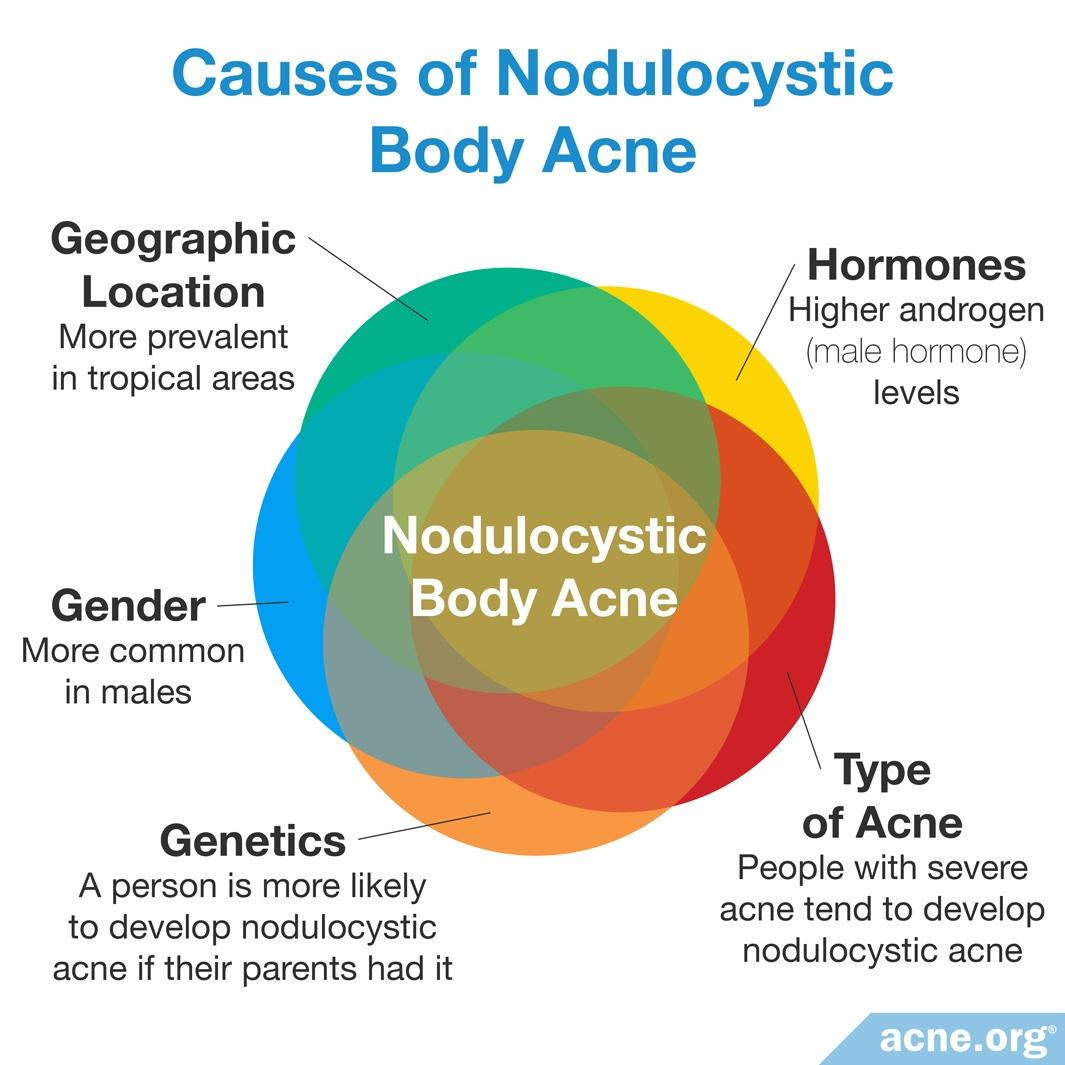 Causes of Nodulocystic Body Acne