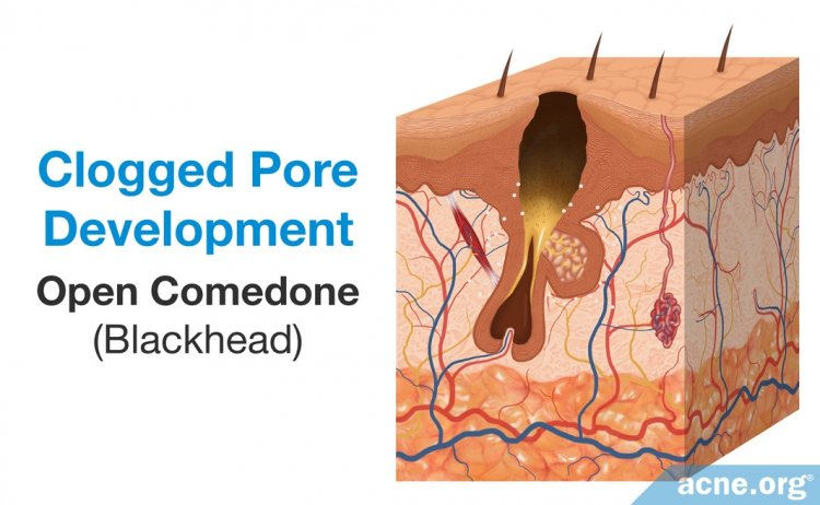 Clogged Pore Development: Open Comedone (Blackhead)