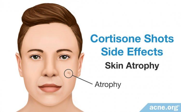 Cortisone Side Effects: Skin Atrophy