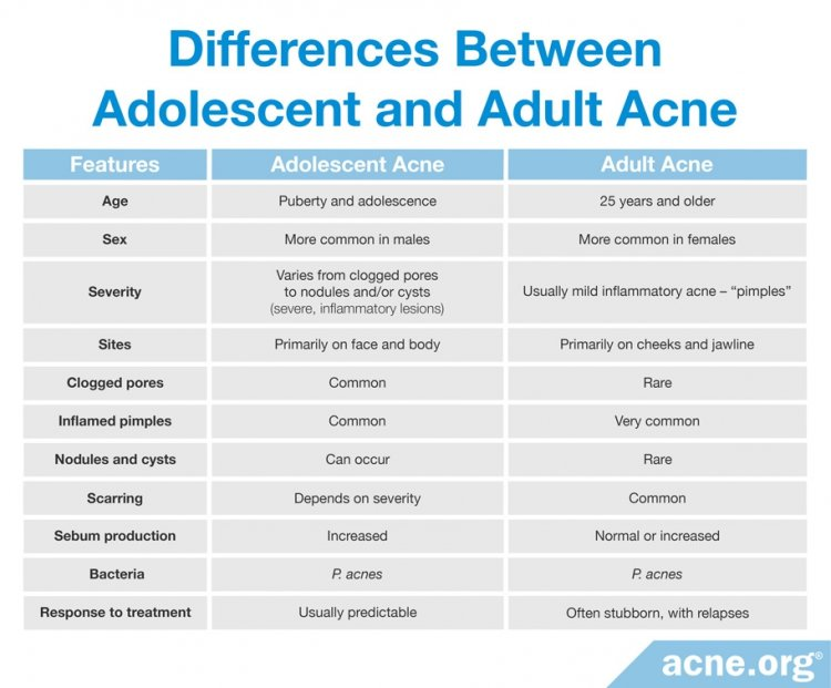 Differences Between Adolescent Acne and Adult Acne