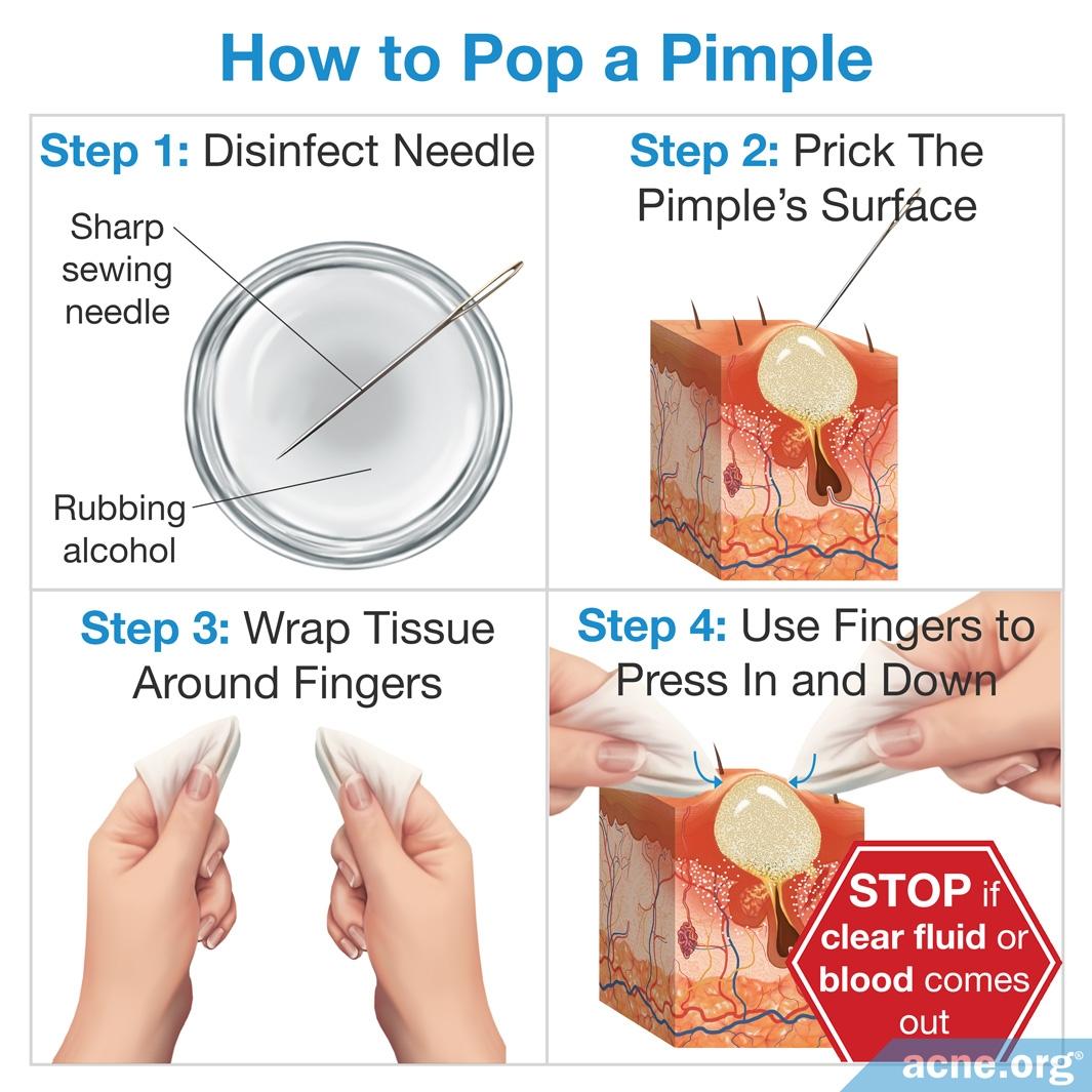 Pimple Pop Diagram - Wiring Diagrams Data Base