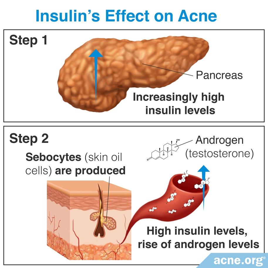 Insulin's Effect on Acne