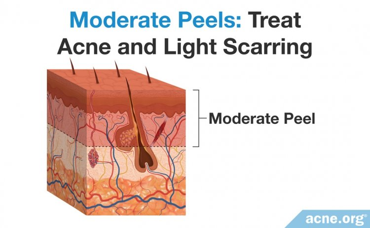 Moderate Chemical Peels - Treat Acne and Light Scarring