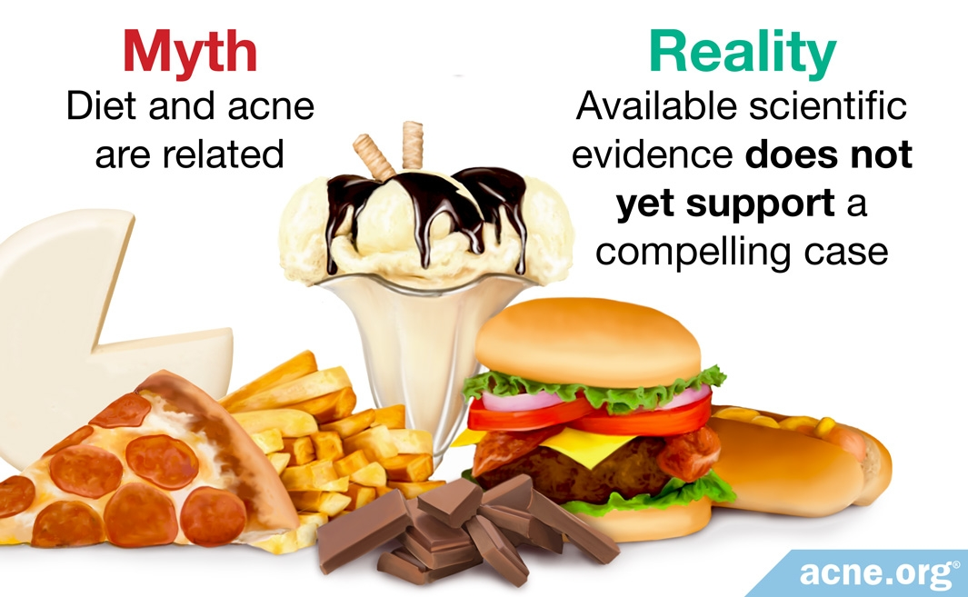 Myth: diet and acne are related