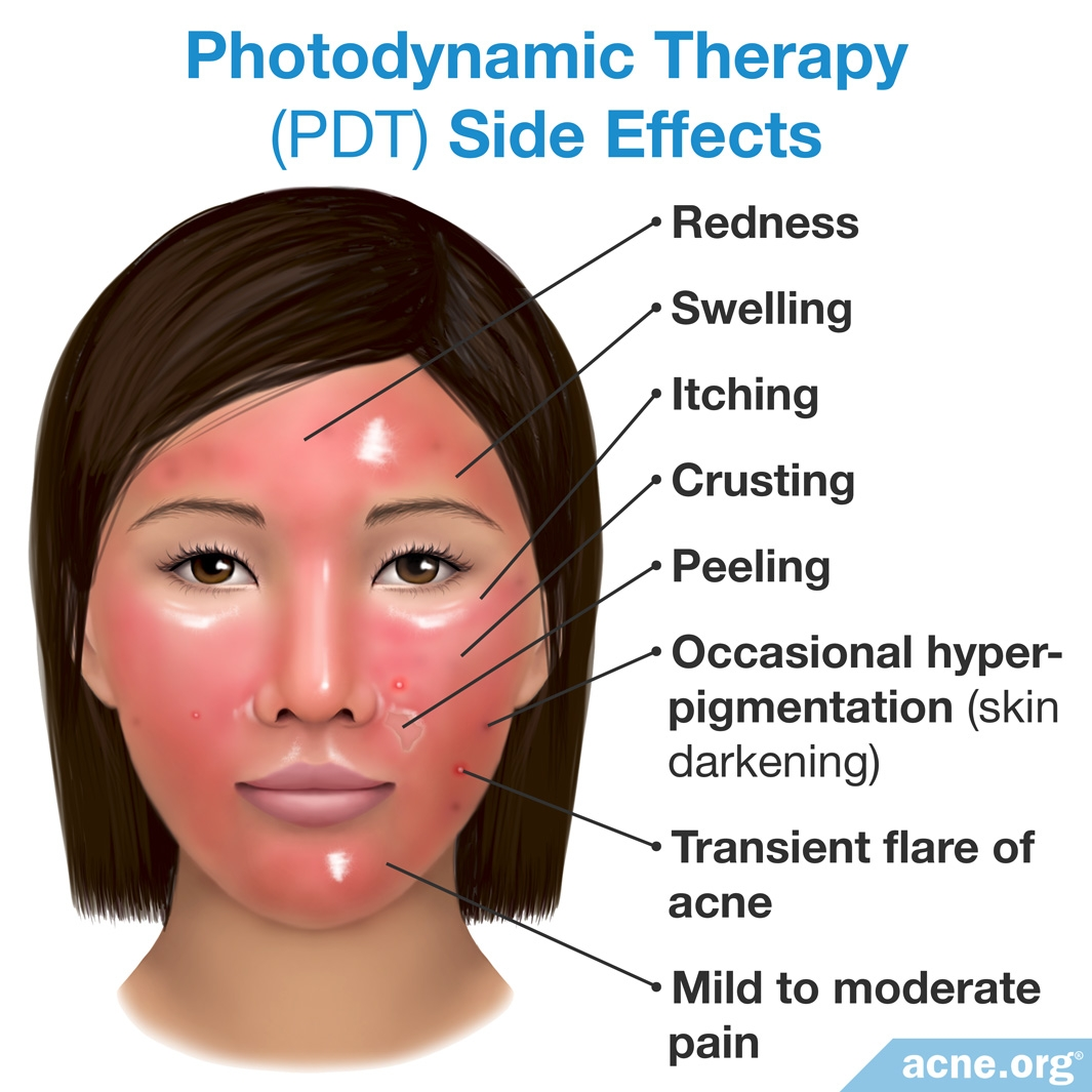 Photodynamic Therapy (PDT) Side Effects