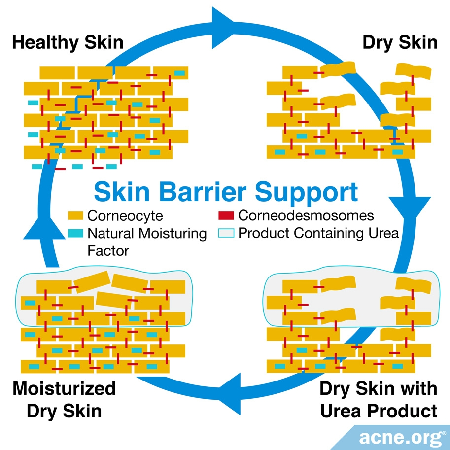 Skin Barrier Support