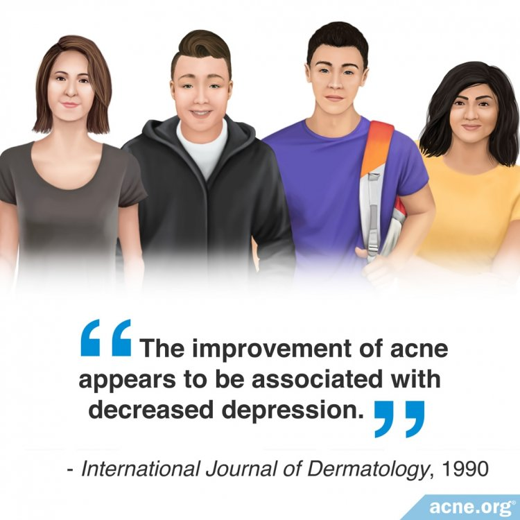 The Improvement of Acne Appears to Be Associated with Decreased Depression