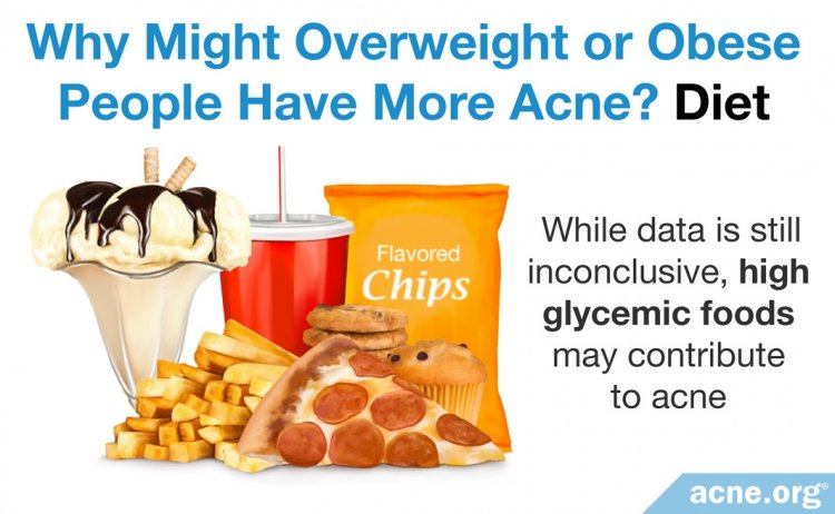 Why Overweight or Obese People Might Have More Acne: DietMobile image here