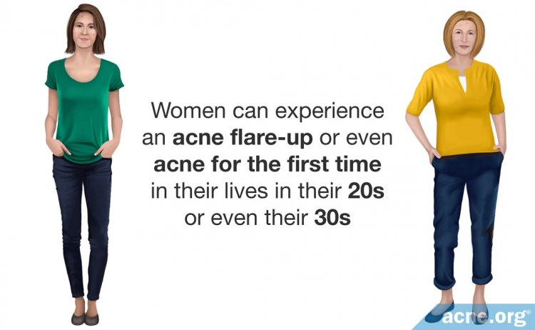 Women and Adult Acne