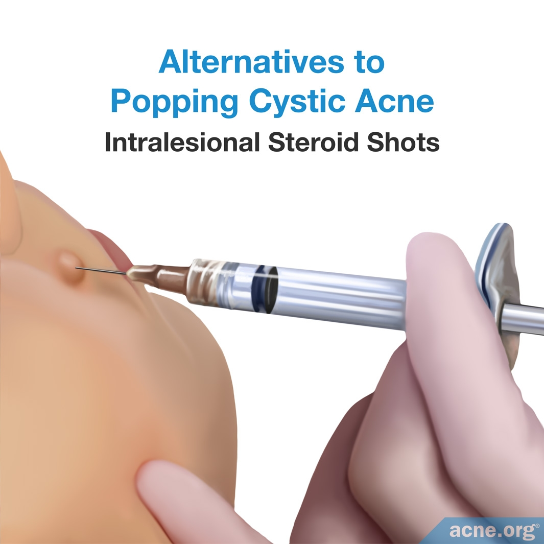 Alternatives to Popping Cystic Acne - Intralesional Steroid Shots