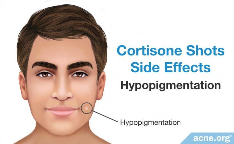 Cortisone Side Effects: Hypopigmentation