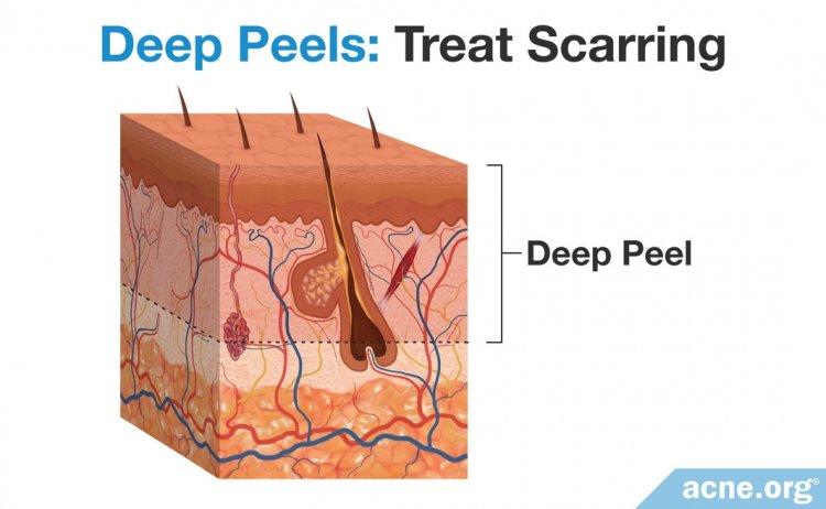 Deep Chemical Peels - Treat Scarring