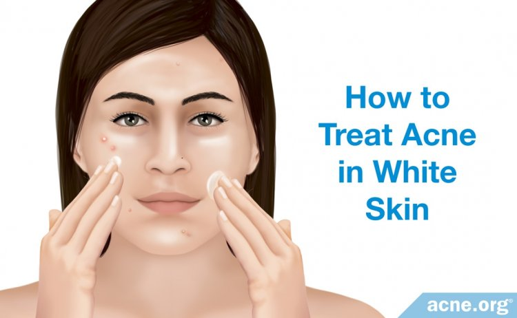 How to Treat Acne in White Skin