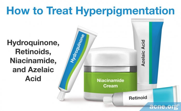 How to Treat Hyperpigmentation