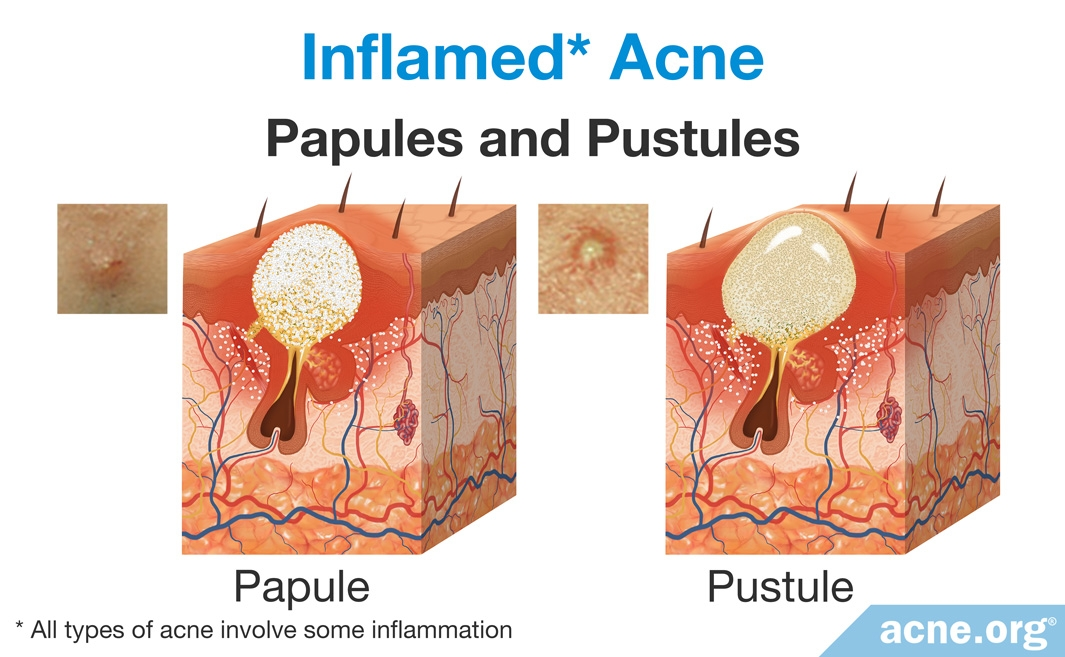 Inflamed Acne: Papules and Pustules